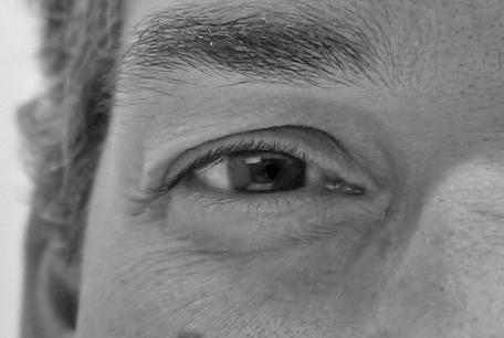 felix-ojo-izquierdo